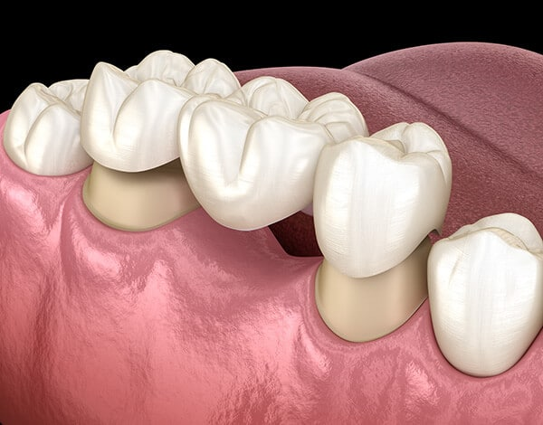 Dental Bridge Illustration