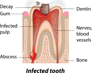 root canal treatment for infected tooth diagram