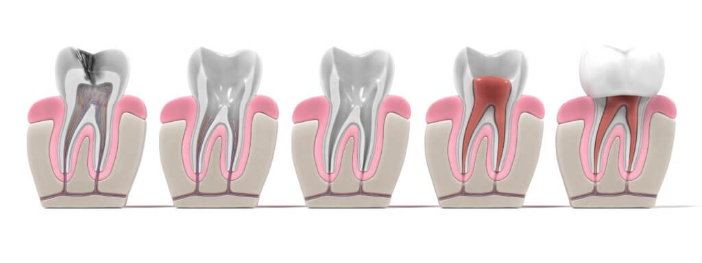 Root Canal process diagram